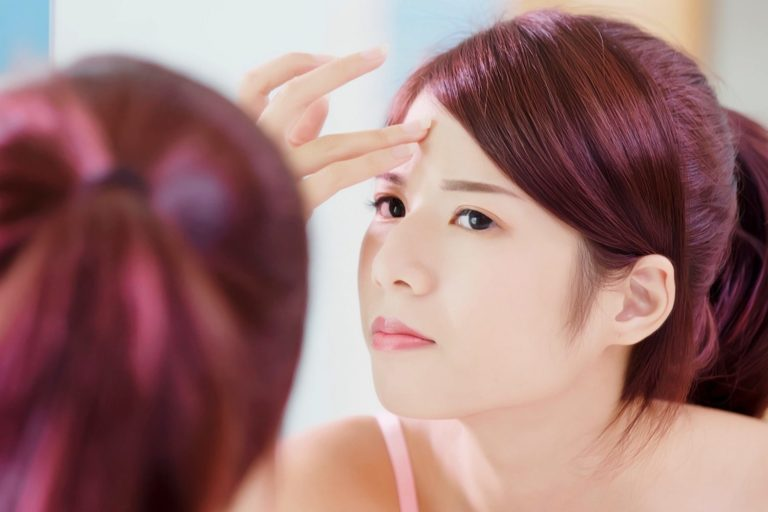 How to Get Rid of Forehead Acne, According to 11 Experts